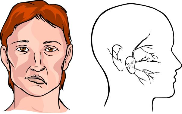 Obat Sulit Bicara Karena Stroke